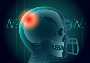 PA Traumatic Brain Injury Lawyers