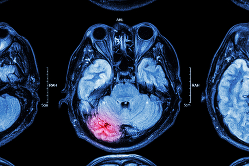 ER Doctors Often Fail to Diagnose Brain Injuries